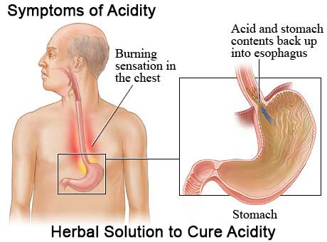 Acidity Treatment