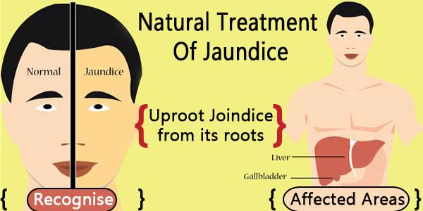 joindice treatment
